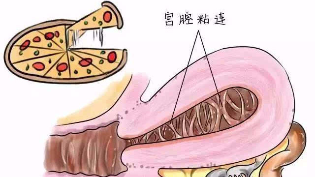 宫腔粘连严重会怎么样?是否需要治疗?